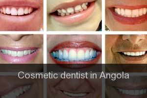 Cosmetic dentist in Angola