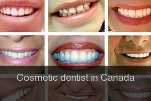 Cosmetic dentist in Canada